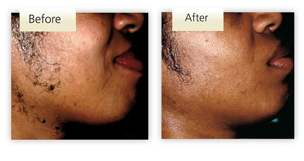 Bellair Laser Clinic - Laser Hair Removal